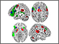 An fMRI image of the human brain showing when it is active in response to rhythm and grammar.