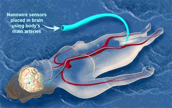 Some day, nanowires routed to the brain through the circulatory system may help patients.