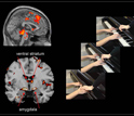 Functional Magnetic Resonance Imaging scans of aggressive boys showing strong reaction in brain.