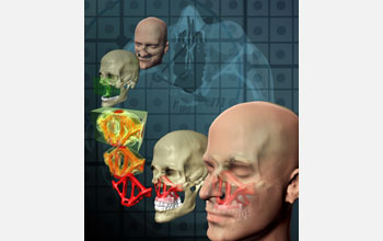Image showing facial reconstruction through the use of topological optimization.