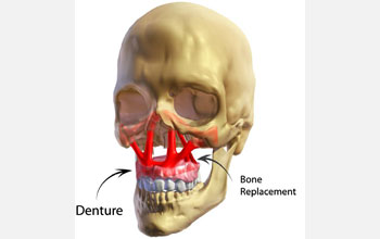 Image showing the insertion of a denture into the craniofacial skeleton.