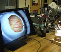 Image of a robotic tool being developed to assist with eye surgery.