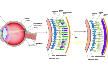 schematic of an eye and implant