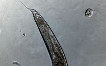 Photo of a C. elegans worm tail belonging to a hermaphrodite.