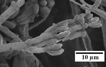 A scanning electron micrograph of fungus Nodulisporium sp.
