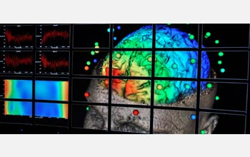 Photo of a bank of computer monitors showing a visualization of the human brain.