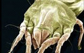 microscope image of an American house dust mite