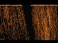 microtubules in heart cells from a healthy patient (left) and from a patient with heart failure